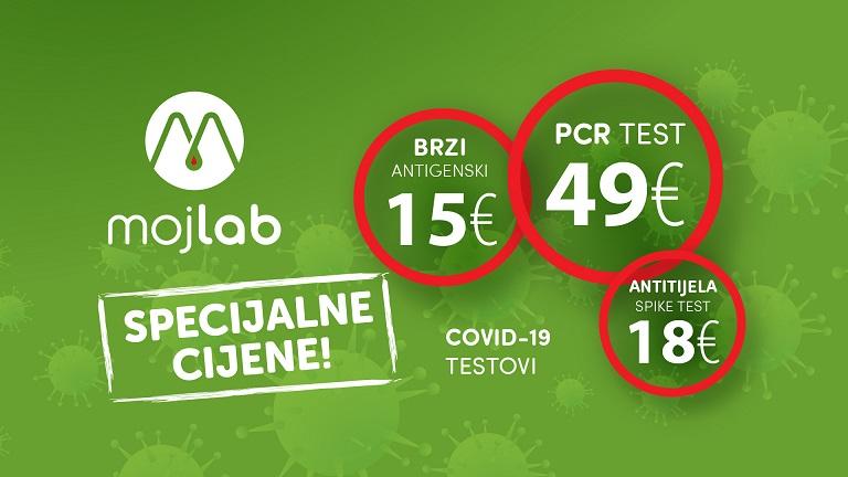 U Moj Lab laboratoriji, od sada specijalne cijene COVID 19 testova!